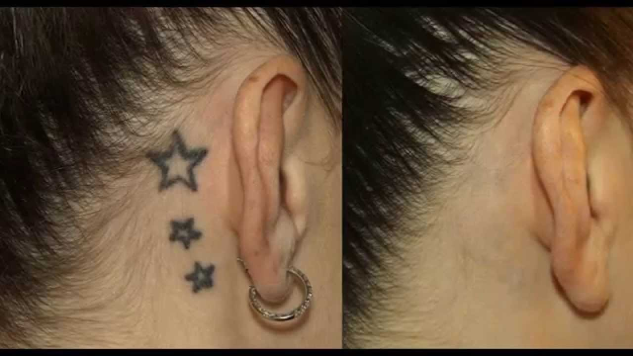 Laser Tattoo Removal Melbourne Services
