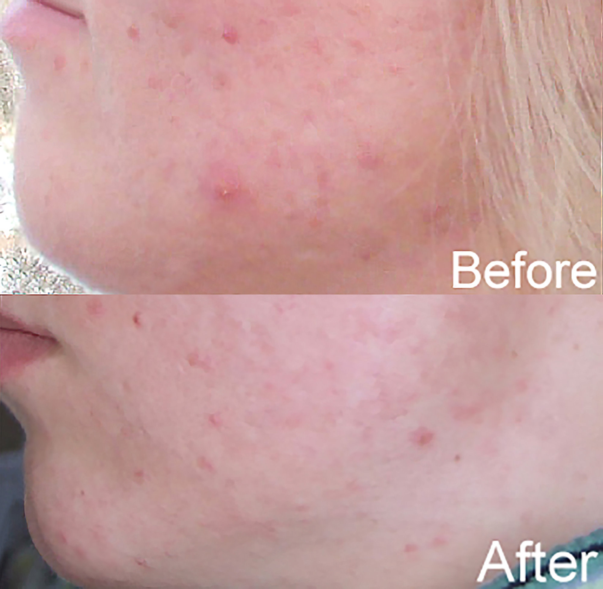 Acne treated with blue LEDs