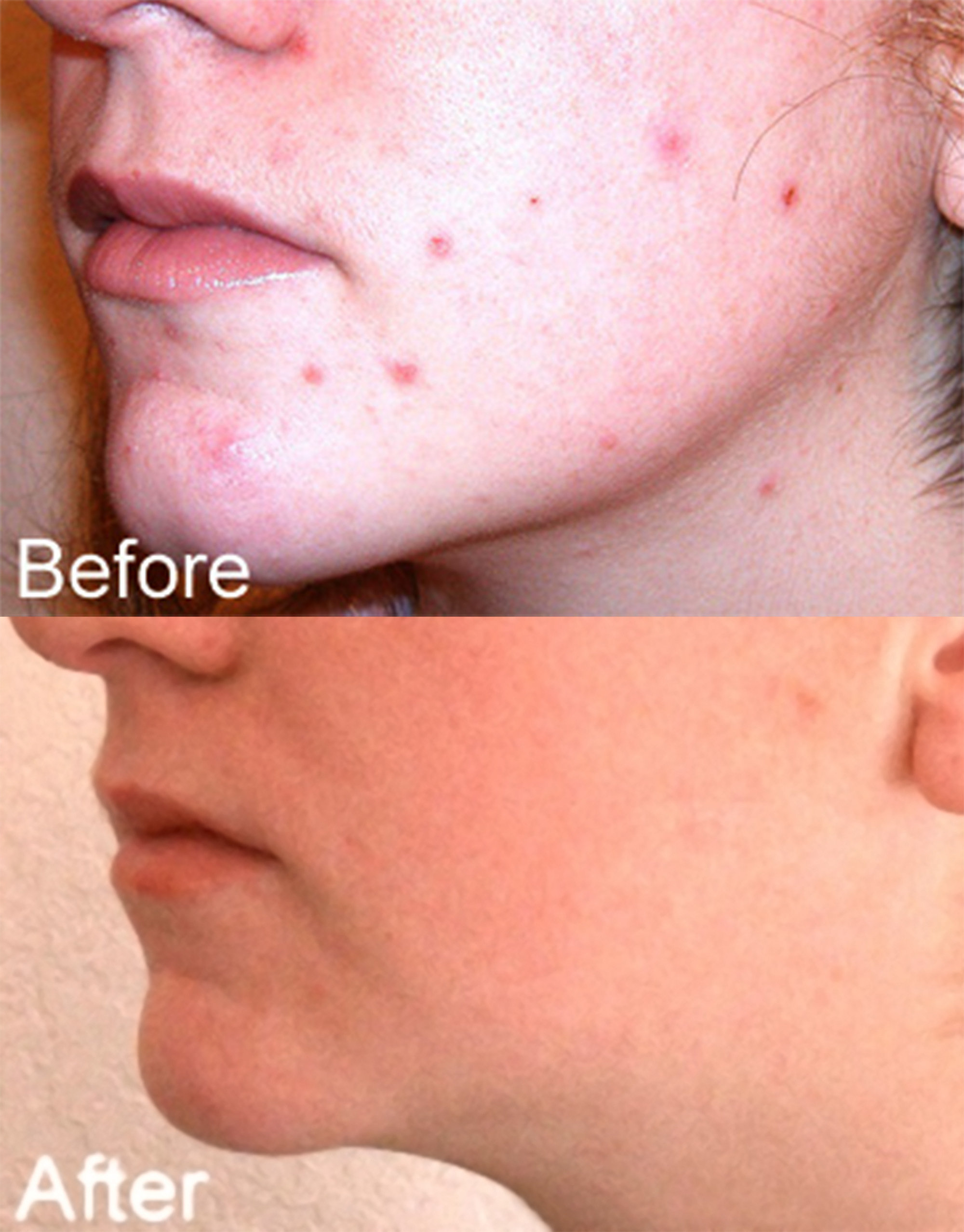 Acne treated with blue LEDs