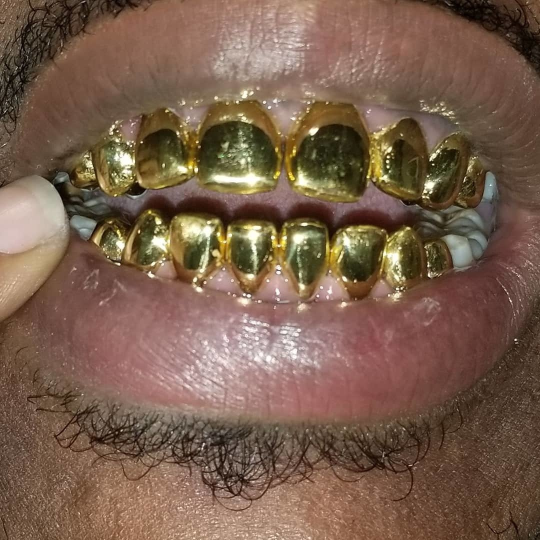 22K Gold (Permanent Crowns)