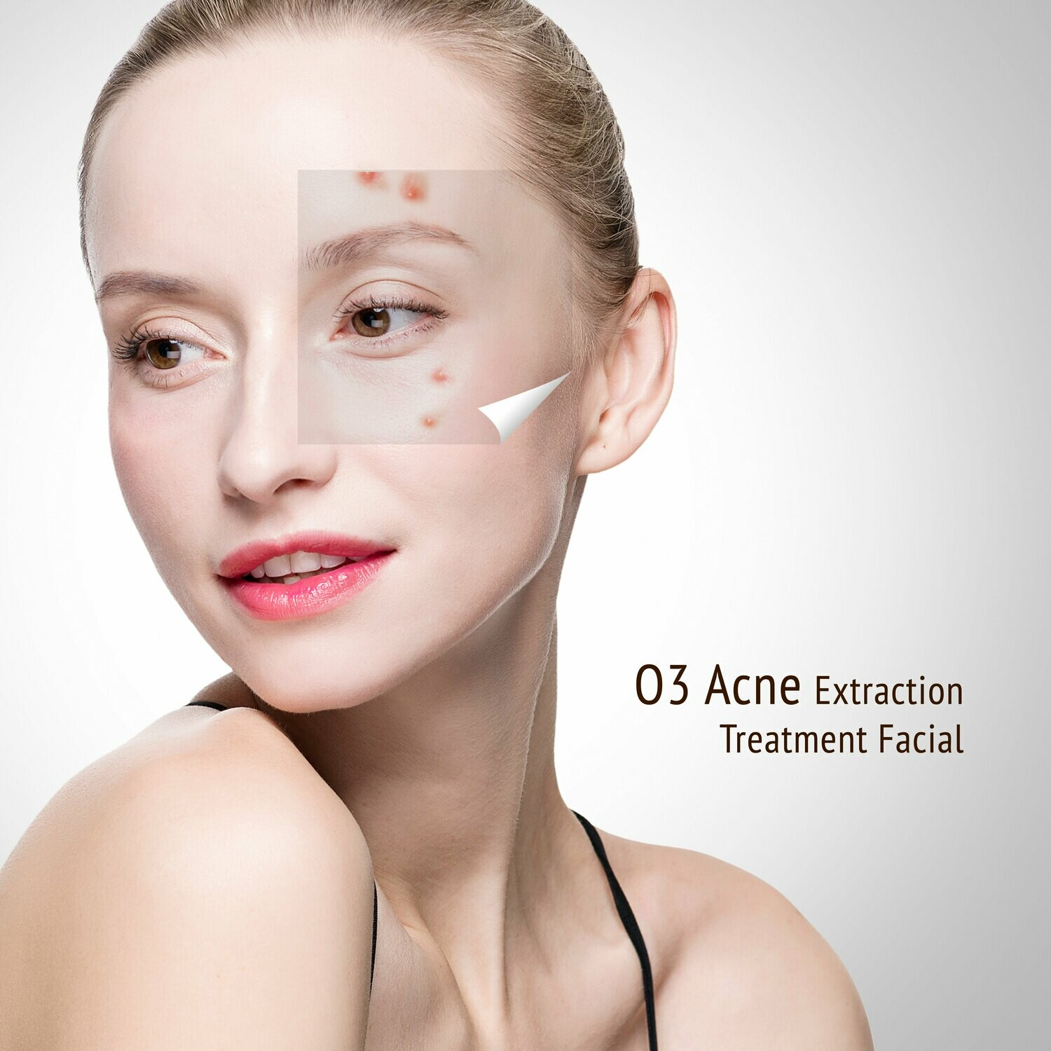 O3 Acne Extraction Treatment Facial Trial