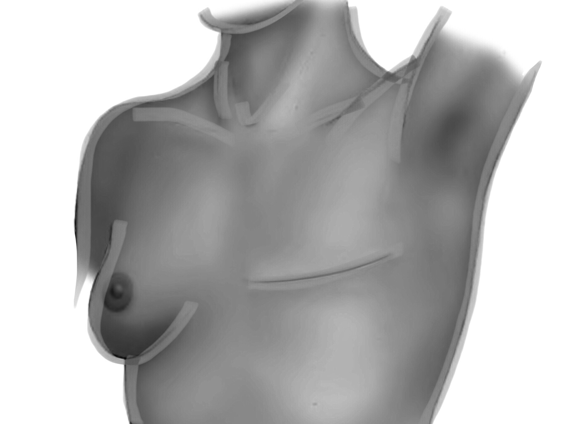 Breast Reconstruction 00001