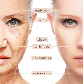 HIFU Intensive Non-Surgical Face Lift