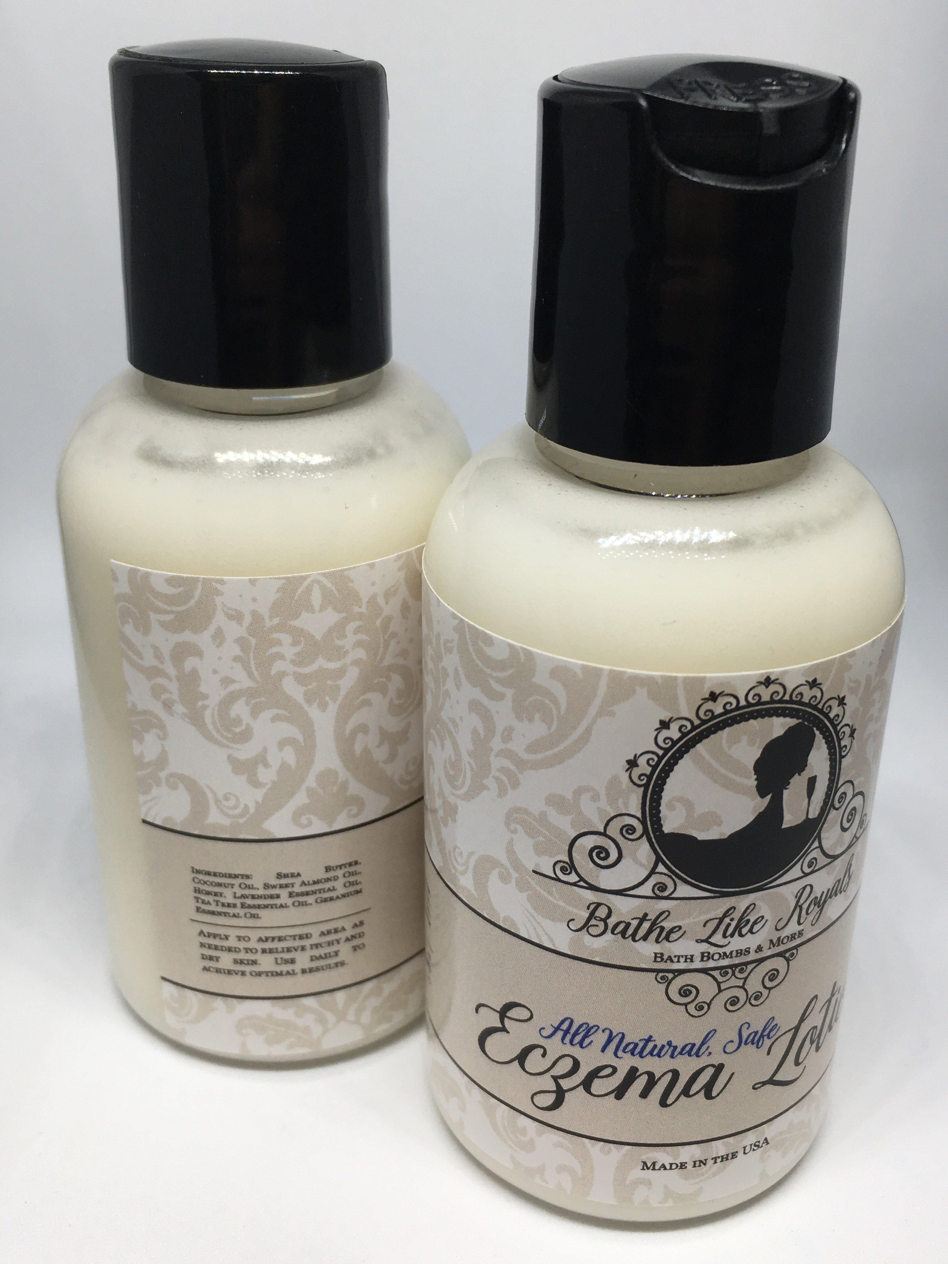 All Natural, Homemade Eczema Lotion - 2oz EczLotion2