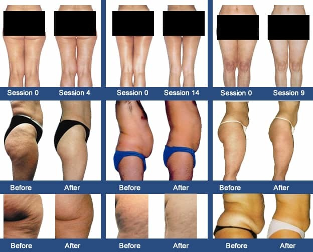 Endermologie Lipomassage - 4 sessions 00056