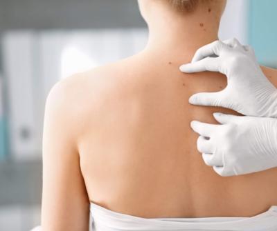 Skin Tags Treatment
