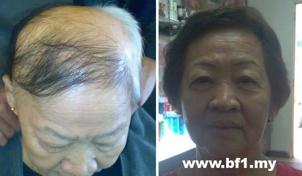 Control Hair Loss And Promoting Hair Growth within 7 days, money back guarantee.  Hair Growth Home Care Set is for 30-45 days usage to testify our Hair Growth Result within 7 days.  It helps to resolved more then 90% hair loss and scalp problems and perform new hair growth within 7 days of usage follow our direction.  http://shop.bf-1.com/index.php?main_page=index&cPath=4