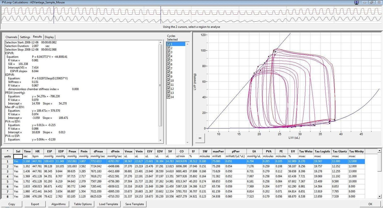 Pressure-Volume Loop Analysis Module for LabScribe Software