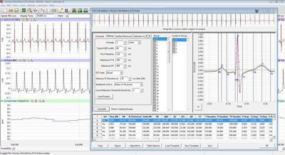 ECG Analysis Module