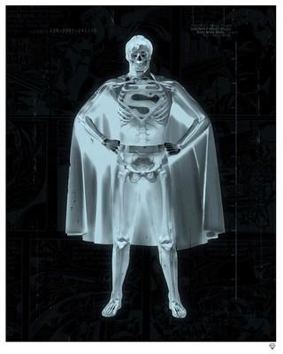 XRay - Clarke Superman