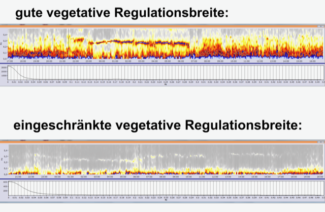 Blick ins vegetative Nervensystem / Herzratenvariabilitätsanalyse