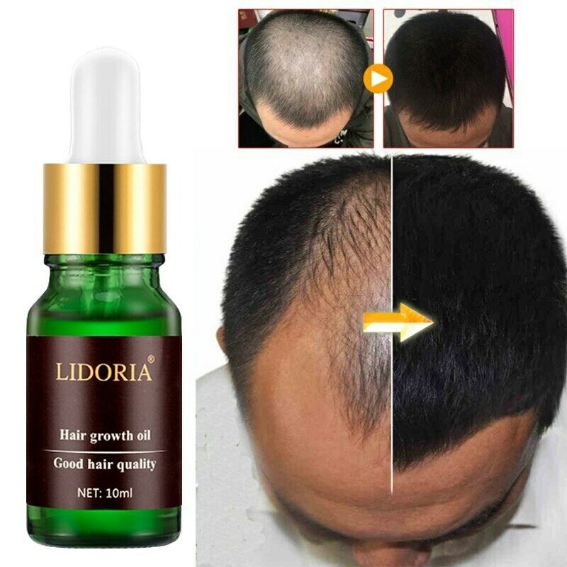 The 14 Best Hair Regrowth Oil For Baldness 2019: Reviews