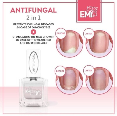 Antifungal – nail growth stimulator, 9 ml.