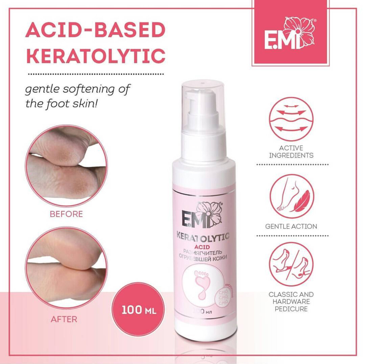 Acid-Based Keratolytic – Rough Skin Softener based on acids: citric, tartaric and lactic, 30 or 100 ml