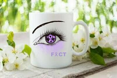 Ceramic Coffee/Tea Mug 300ml (11oz)