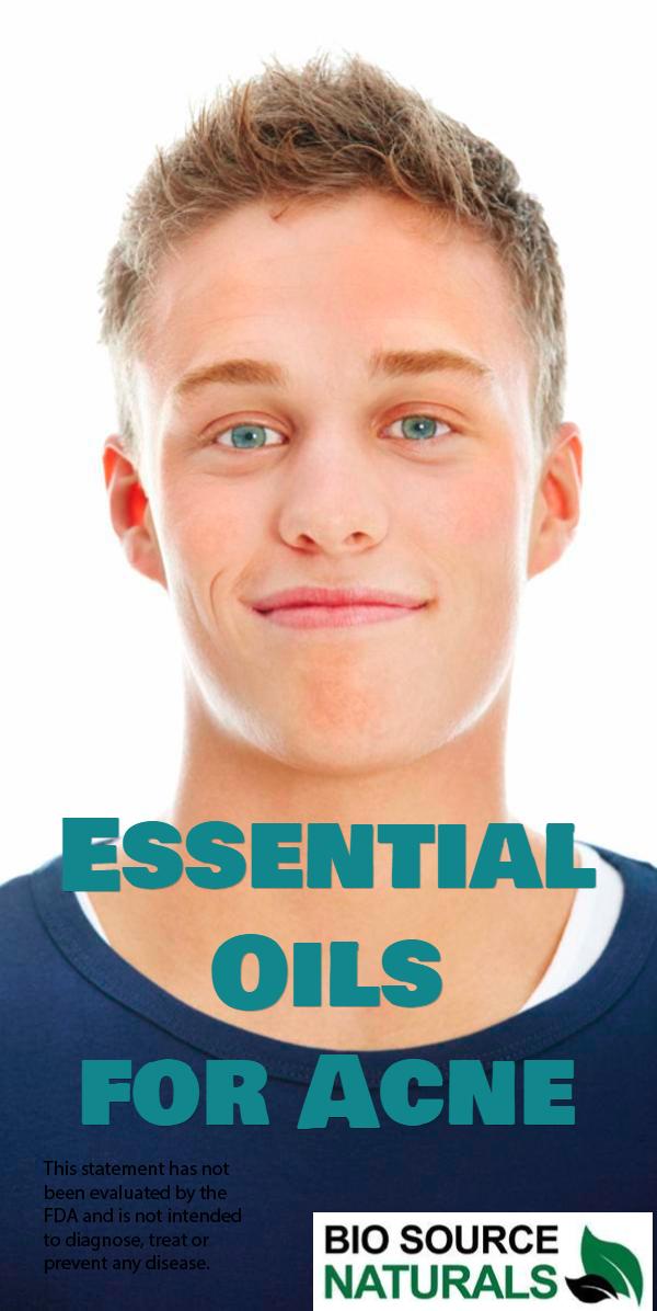 Cedarwood Pure Essential Oil  - Himalayan