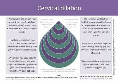 Handout: Cervical Dilation (print-your-own)