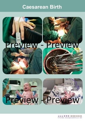 Caesarean Birth - A2 Photo Poster