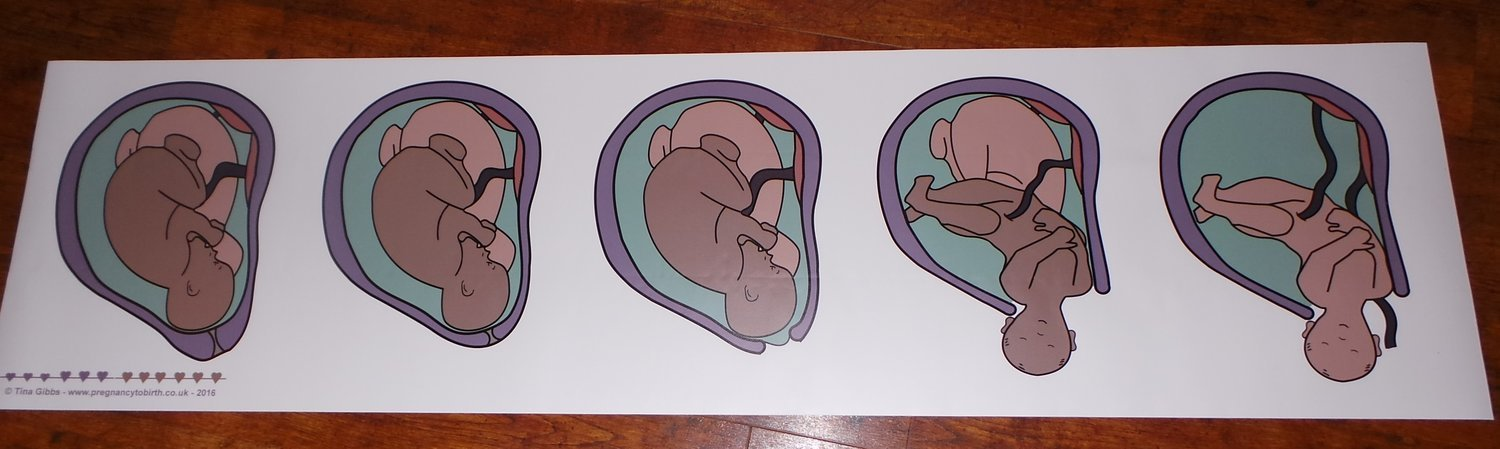 Twin Birth Process Banner