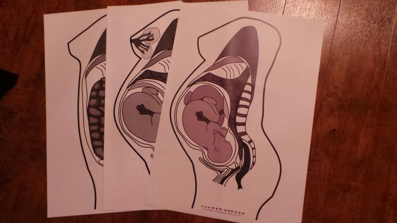 Cross section pregnant woman singleton & twins - A2 poster set