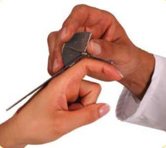 Vinkelmätare/ Goniometer för fingrar , 15 cm