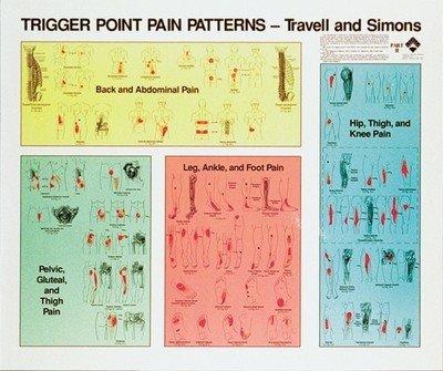 Trigger Punkt Planscher, Travell & Simon , 82 x 97 cm, set med 2 st