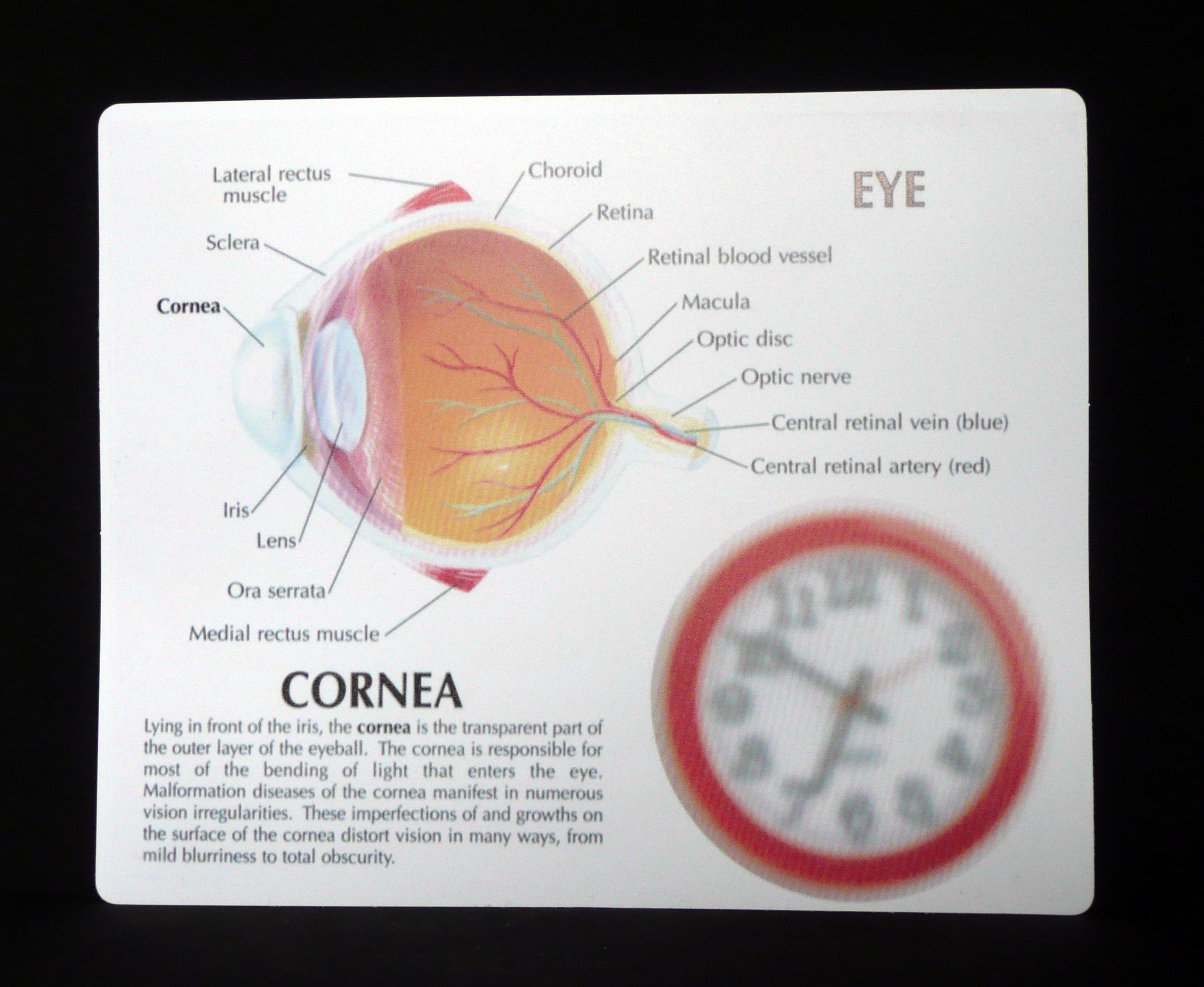 Anatomical Human Cornea Disease Eye Model   Brain, Eye and Ear ...
