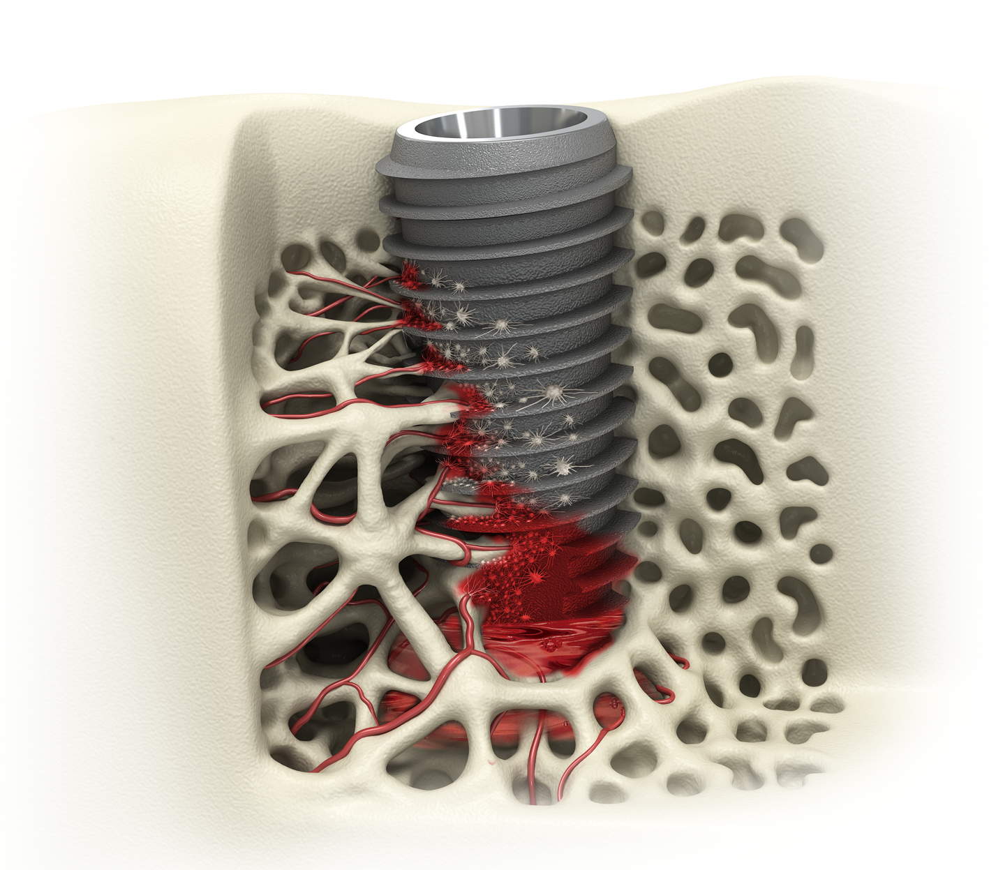 UFII Implant [Narrow]