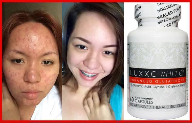 Luxxe White - Enhanced Glutathione 60 Capsules (775mg)