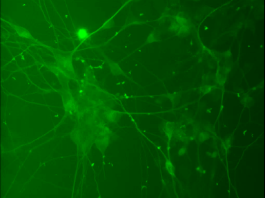Quick-Neuron™ Dopaminergic EXGS-QNDS